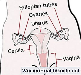 Unterschiede in PCOS, Endometriose und Myome (Uterus)