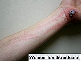 Was ist Zellulitis? Zellulitis-Infektion, Cellulitis-Bilder