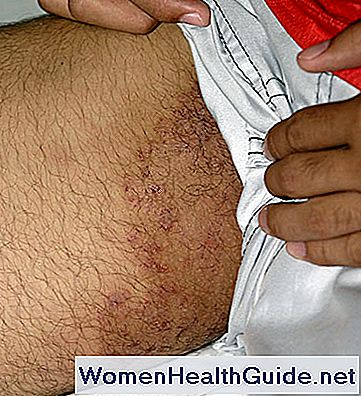 pilz_infection_tinea_cruris_jock_itch