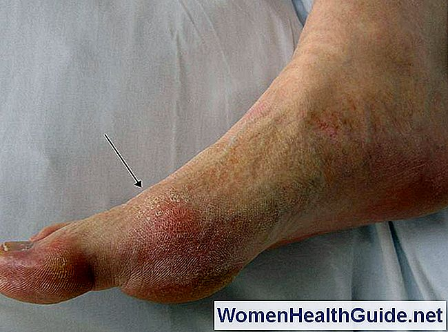 7 Gout Facts And Myths Every Suffer debe saber