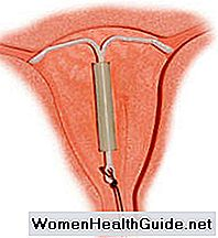 IUD ormonale