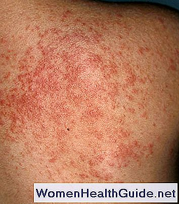 Itchy Back Rash Pictures, problemi di pelle e altre cause
