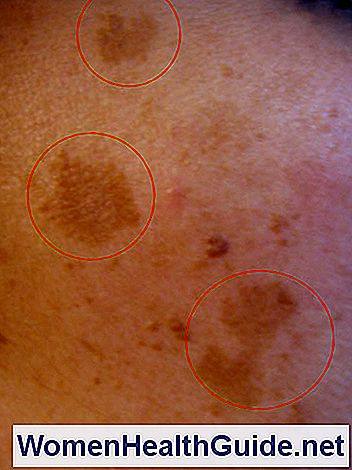 Melasma, Chloasma Pictures (Dark Skin Pigmentation on Face)
