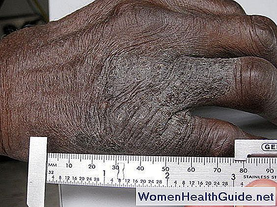Neurodermite (Lichen Simplex Chronicus) Crash Scratch Rash