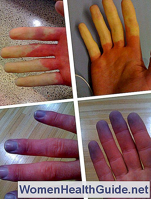 Fenomeni del fenomeno di Raynaud, cause, diagnosi, trattamento
