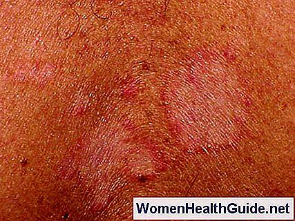 Seborrhoische Dermatitis Bilder, Behandlung (Gesicht, Kopfhaut ...