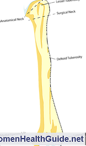 Tennis Elbow (Laterale Epicondylitis)