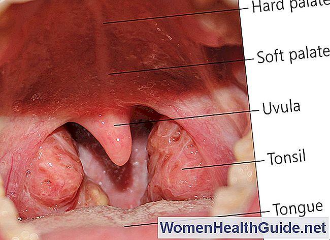 Amigdalitis (Amígdalas hinchadas, amigdalitis de garganta dolorida ...