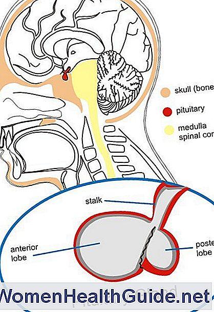 Minderwertige Hypophyse (Hypopituitarismus), Hormonmangel ...