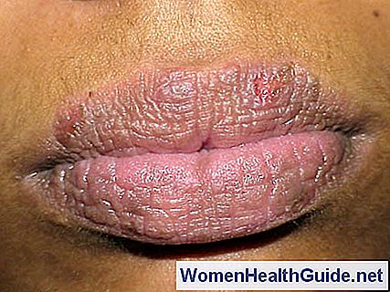 Rash Around Mouth (Lips) Cause, immagini, trattamento